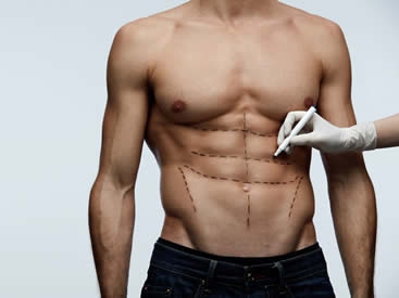 body-contouring-for-men