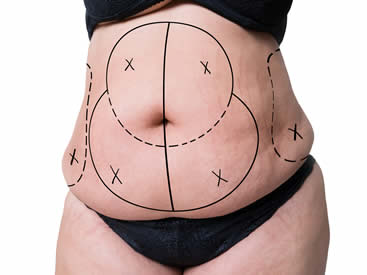 liposuction-in-turkey