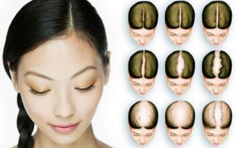 hair transplant for women in turkey