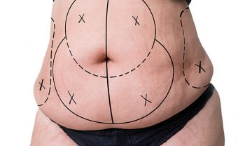 liposuction in turkey