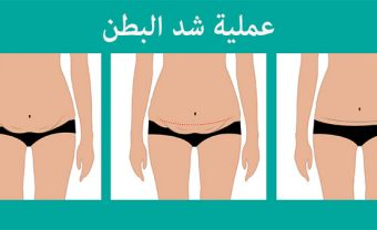 tummy tuck turkey