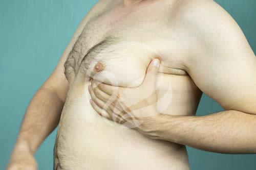 gynecomastia in turkey