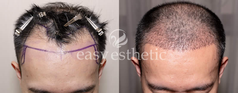 result of hair transplant